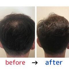 ナチュラル 薄毛改善 頭皮改善 頭皮ケア ヘアスタイルや髪型の写真・画像