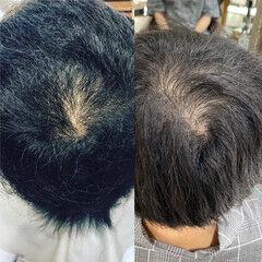 ナチュラル ショート 薄毛改善 ヘアスタイルや髪型の写真・画像