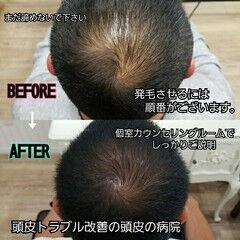 頭皮改善 発毛 髪の病院 ショート ヘアスタイルや髪型の写真・画像