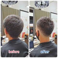 薄毛改善 ショート 頭皮ケア 髪の病院 ヘアスタイルや髪型の写真・画像
