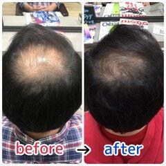 髪の病院 名古屋市守山区 頭皮改善 頭皮ケア ヘアスタイルや髪型の写真・画像