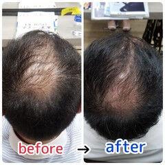 髪の病院 薄毛改善 ナチュラル 名古屋市守山区 ヘアスタイルや髪型の写真・画像