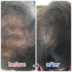 頭皮ケア ナチュラル 髪の病院 ショート ヘアスタイルや髪型の写真・画像
