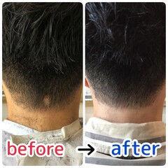 頭皮改善 ショート ナチュラル 名古屋市守山区 ヘアスタイルや髪型の写真・画像