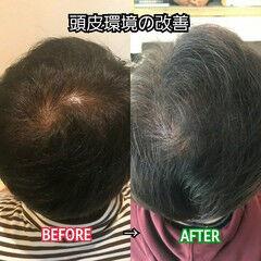 ナチュラル ショート 髪の病院 名古屋市守山区 ヘアスタイルや髪型の写真・画像