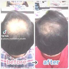 髪の病院 名古屋市守山区 頭皮ケア ナチュラル ヘアスタイルや髪型の写真・画像