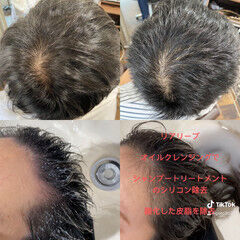 薄毛改善 ショート 頭皮改善 ベリーショート ヘアスタイルや髪型の写真・画像