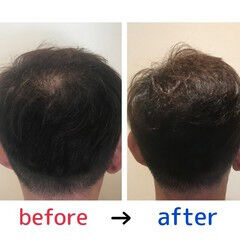 頭皮改善 ショート ナチュラル 髪の病院 ヘアスタイルや髪型の写真・画像