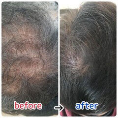 ショート ナチュラル 頭皮ケア 薄毛改善 ヘアスタイルや髪型の写真・画像