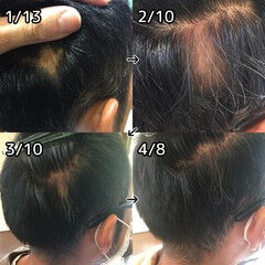 薄毛改善 頭皮改善 ショート 名古屋市守山区 ヘアスタイルや髪型の写真・画像