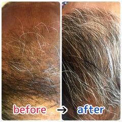 ナチュラル 薄毛改善 髪の病院 頭皮改善 ヘアスタイルや髪型の写真・画像