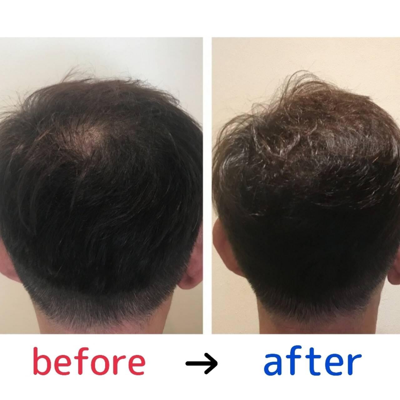 ナチュラル 薄毛改善 頭皮改善 頭皮ケアヘアスタイルや髪型の写真・画像