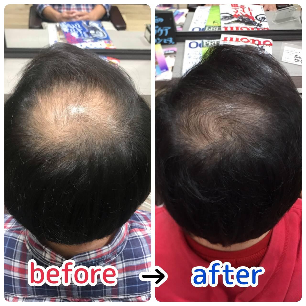 髪の病院 名古屋市守山区 頭皮改善 頭皮ケアヘアスタイルや髪型の写真・画像
