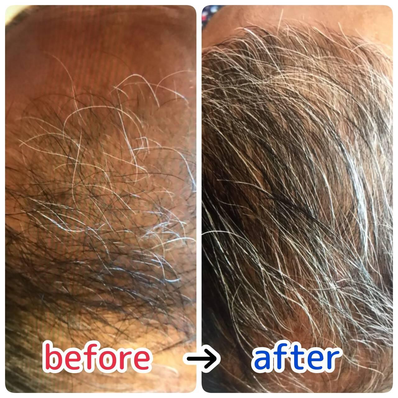 薄毛改善 ショート 髪の病院 頭皮ケアヘアスタイルや髪型の写真・画像