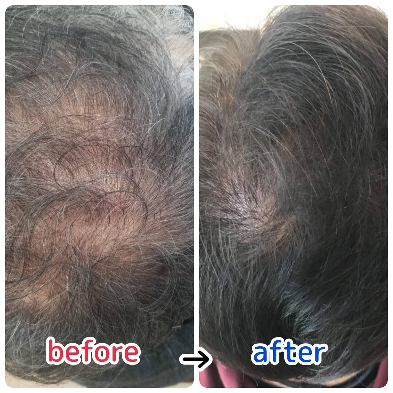 ショート ナチュラル 頭皮ケア 薄毛改善ヘアスタイルや髪型の写真・画像