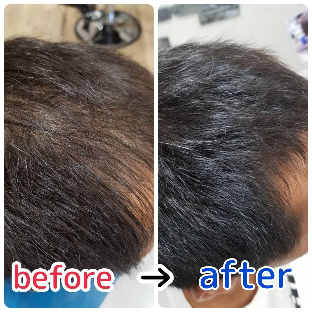 髪の病院 名古屋市守山区 頭皮改善 ナチュラルヘアスタイルや髪型の写真・画像